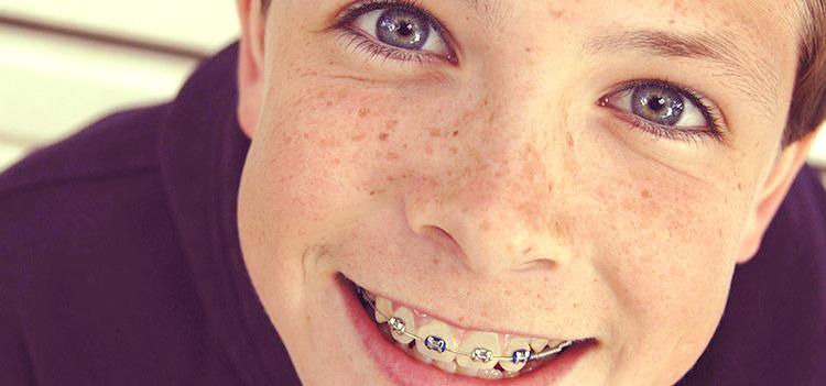 EL ABC del éxito del tratamiento de ortodoncia